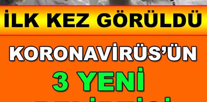Koronavirüsün 3 Yeni Belirtisi Daha Ortaya Çıktı